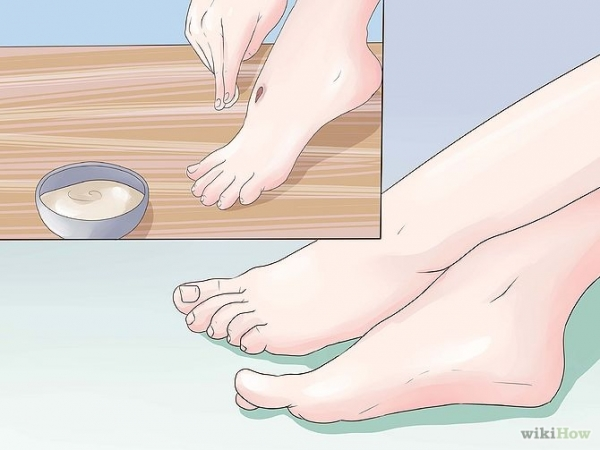 Get Rid of a Scab Step 16.jpg