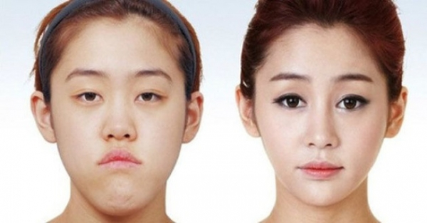 30幾張可能會讓你忍不住衝動的「韓國最大變化整形案例」。