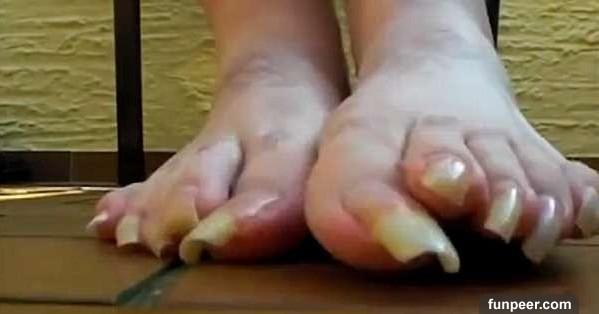 這人幾十年沒剪「腳指甲」PO上網立刻破百萬人點閱!因為他一走起路,就讓所有人都看傻了...